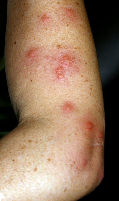 Bed bug bites on the arm