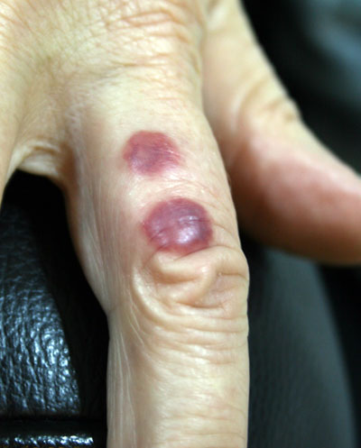 Bed bug bites to the finger